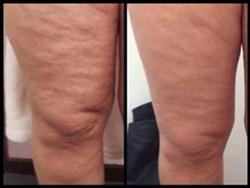 cellulite reduction results