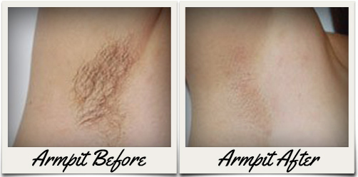 Laser Hair Removal Before and Aftergraphic