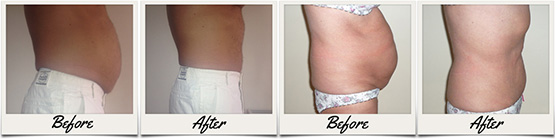 Before And After Laser Lipo