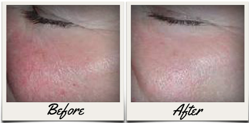 Skin Rejuvenation Before and Aftergraphic