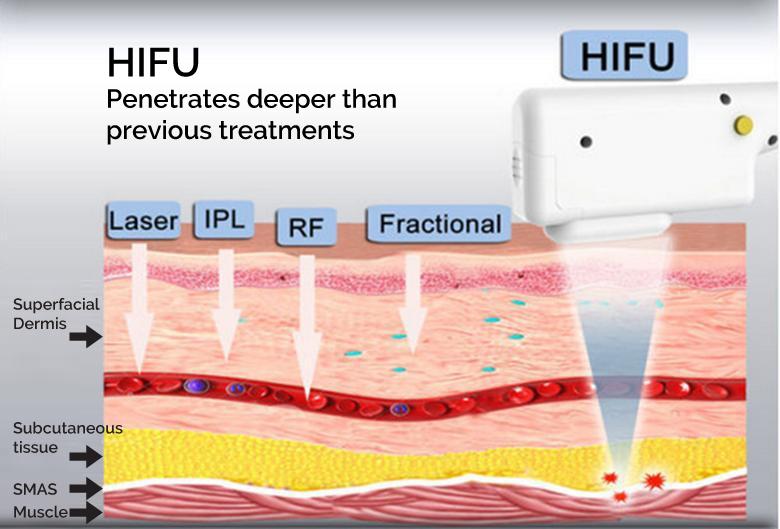 hifu how it works