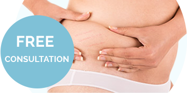 skin-tightening-stretchmark-reduction